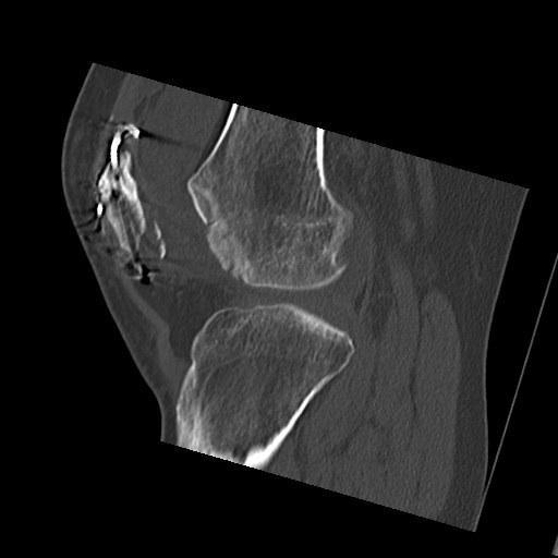 spur knee icd 10