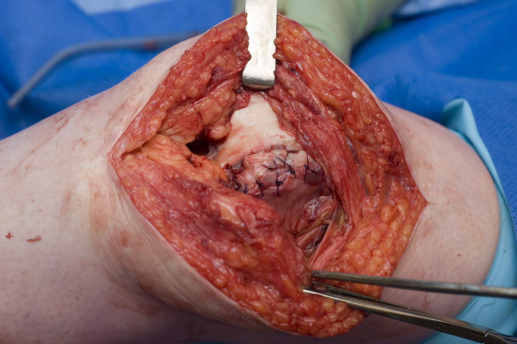 Patellar Fracture Fixation An Unreported Complication Occurring Jaw Wiring Surgery Figure 4 The Osteochondral Defect Stabilized With Interrupted 3 0 Pds Sutures Achieving A Smooth Articular Surface