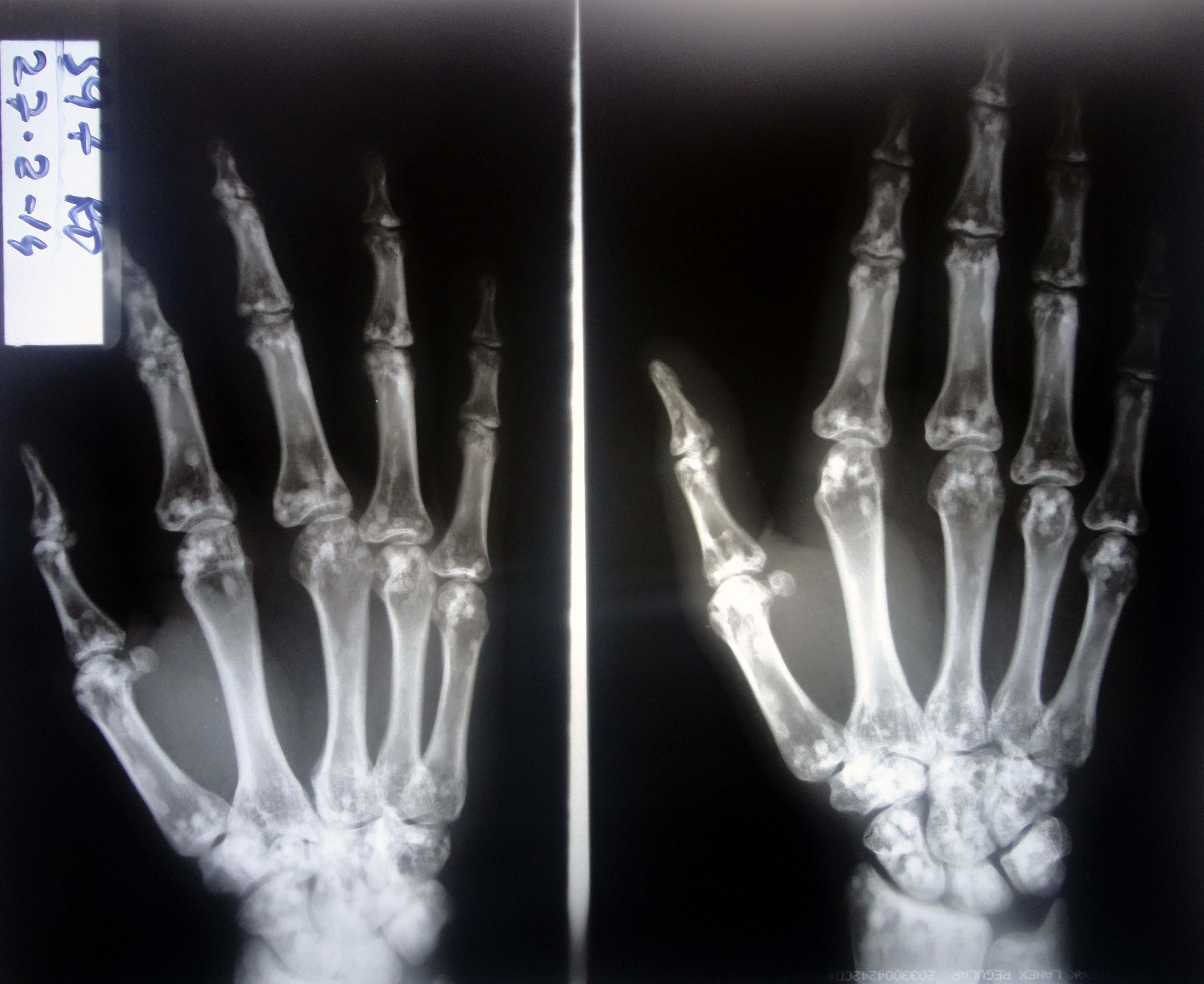 Spotted Bone A Spot Diagnosis Bjmp