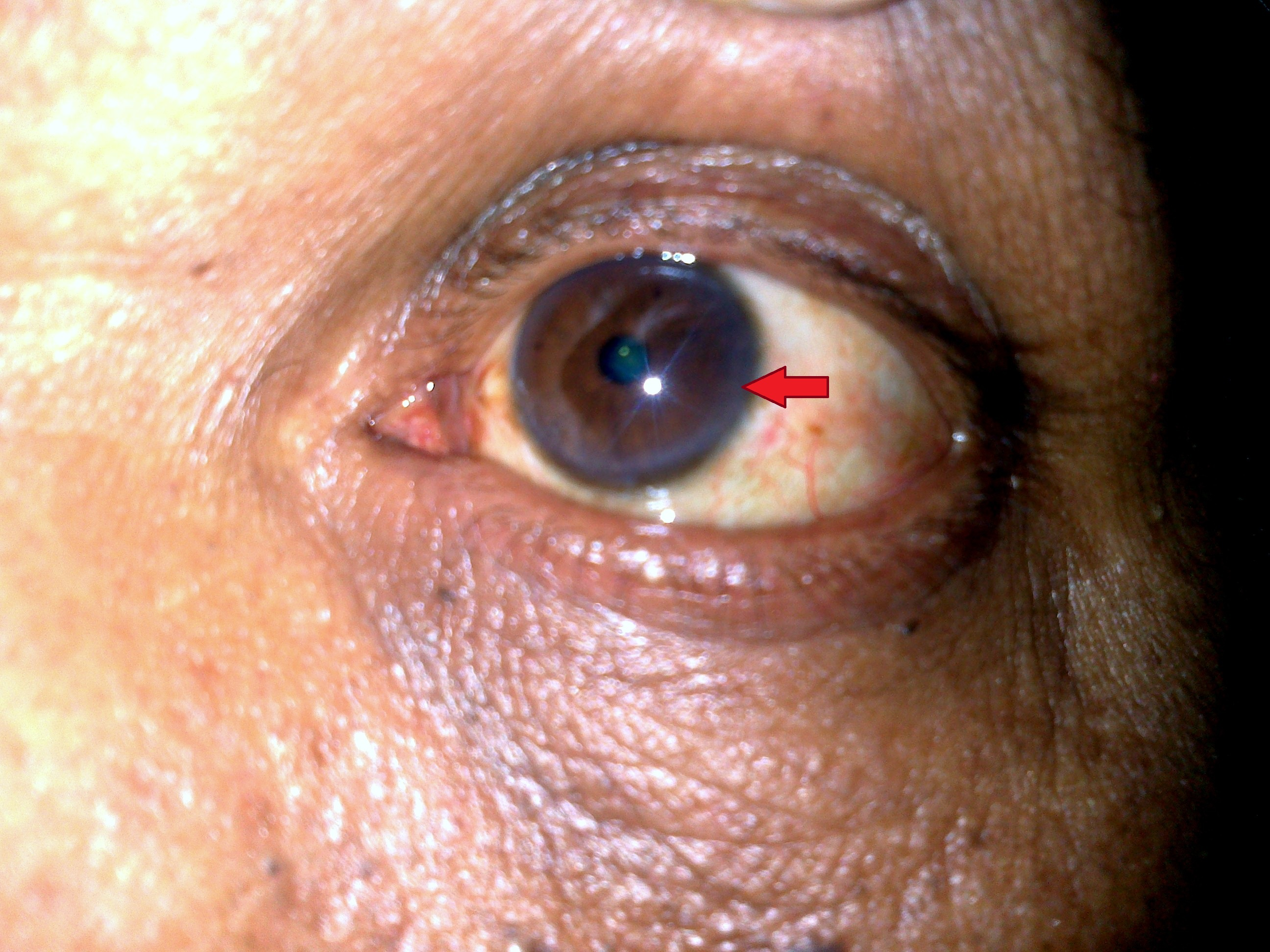 eye �a clue to diagnosis� british journal of medical