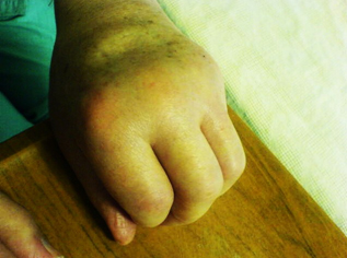 A case of bilateral swelling of the hands in an elderly