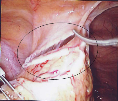 bjmp0309shambu2 2 Mirena IUS (circled) within the omentum. The rate of perforation reported ...